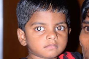 Four-year old Asha, eye cancer survivor.