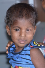 Gopika, 5 years after her eye cancer diagnosis.