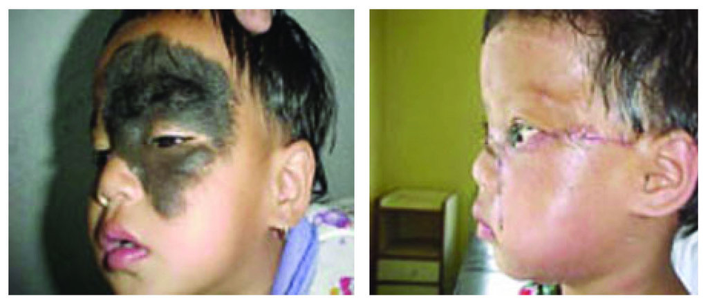 Heal children's lives with corrective surgery