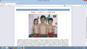 China Breast Cancer Module
