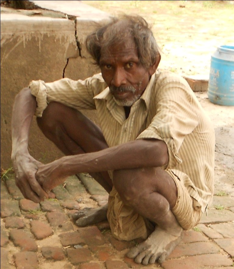 Support  to 500 Most Needy Senior Citizens , India