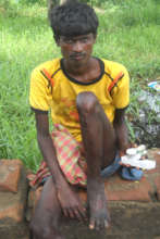 Donate for a Leprosy & TB Patient in Bihar (India)