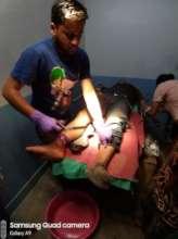 suturing a leg injury