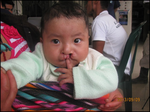 Surgery for Guatemalans with Cleft Lip and Palate