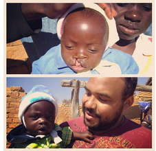 Baby Philimon Before & After Cleft Surgey