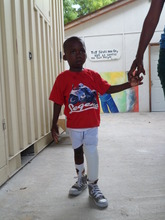 Raphael with his new Prosthesis