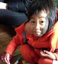 Jiangli was born with a huge mole
