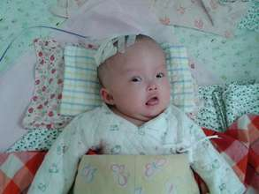 Jiawei had multiple surgeries since she was born