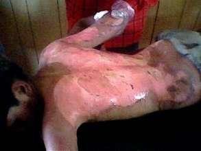 Badly Burned Boy