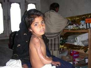 Little Girl In Need of Treatment, Physical Therapy
