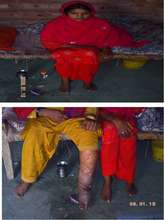 Health Condition of Christian in Rural Area