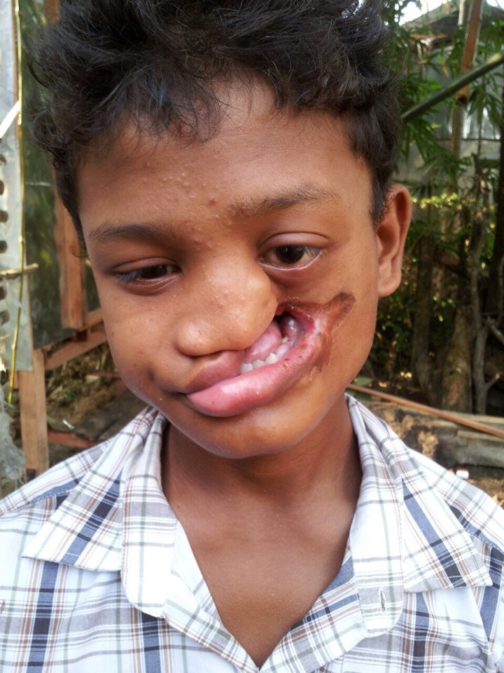 Give cleft lip child a leg-up in Myanmar Philippin