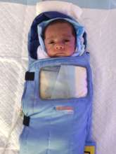 9 WEEKS BABY TREATED FOR ROP