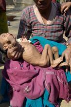 Malnourished baby