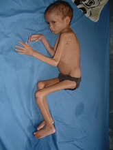 Jamuna after 10 days of NRH Nutritional Care