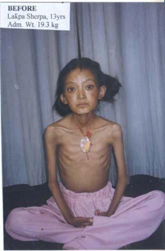 Rescue Children Suffering From Severe Malnutrition