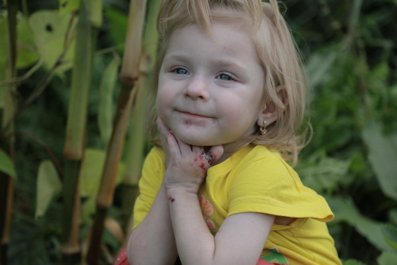 Help Ksenia and 11 children with rare skin disease ...