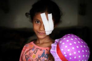 Razan, 8 years old after an airstrike in Yemen
