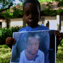 Gabriel, following his free cleft lip surgery.