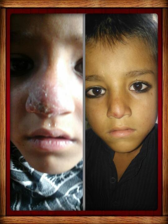 Treat 200 Leishmaniasis  Patients in  Peshawar KPK
