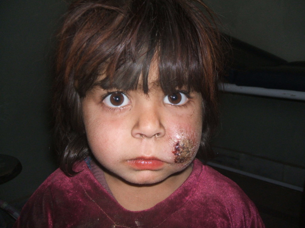 Treat 200 Leishmaniasis  Patients in  Peshawar KPK