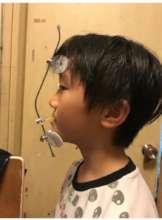 A Child Wearing Reverse Headgear