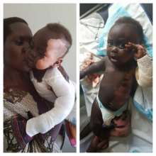 Toddler with severe burns before and after