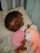 Baby with hydrocephalus