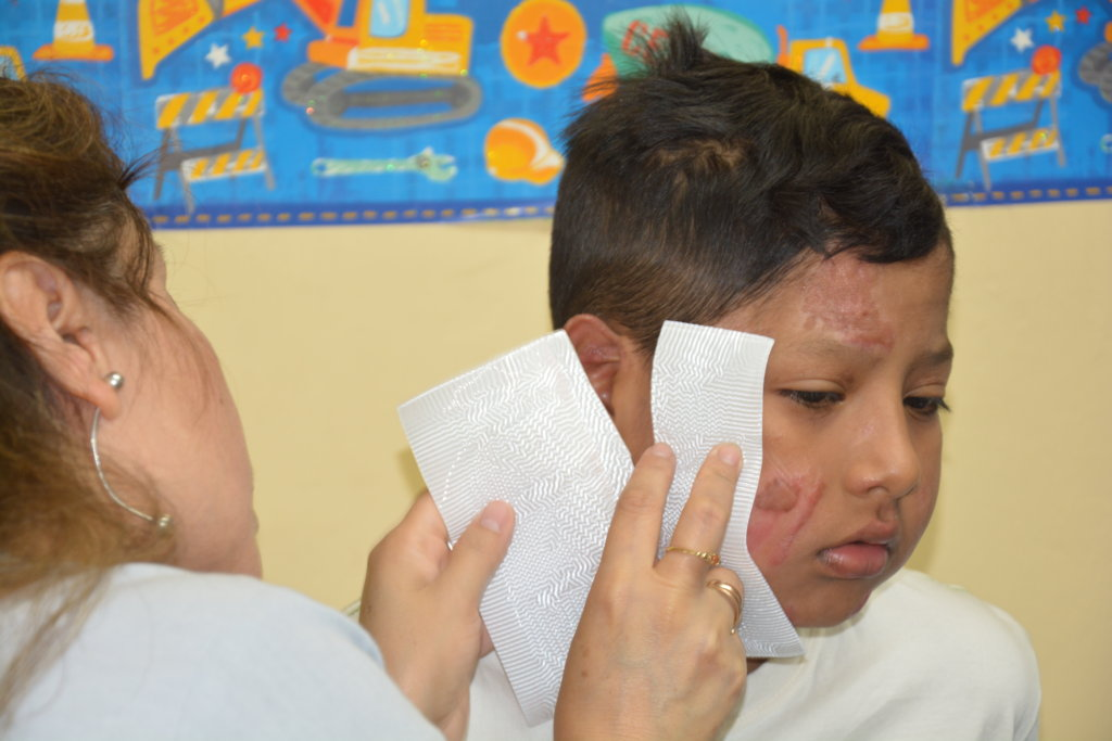 Rehabilitation for 7 Burned Children in Peru