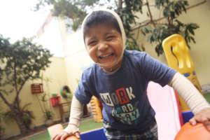Rehabilitation for 7 Burned Children in Peru