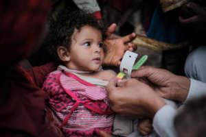 UNICEF/UN057347/Almang