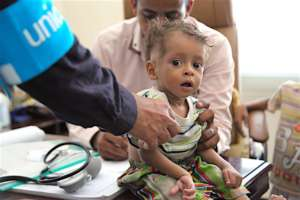 UNICEF health worker screens for malnutrition.