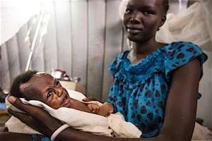 A 2-month old with severe acute malnutrition.