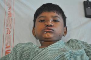 Rahul after his surgery