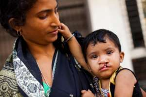 Samina with her mother waiting to get her Smile