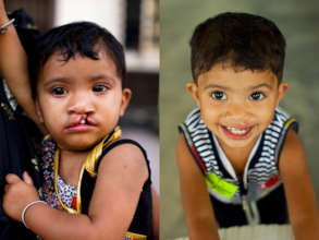 Samina Before and After her surgery