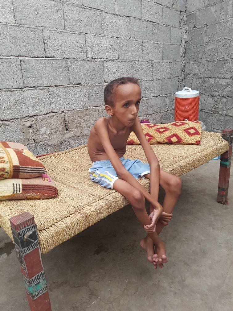 Treatment of 500 Yemeni handicapped children