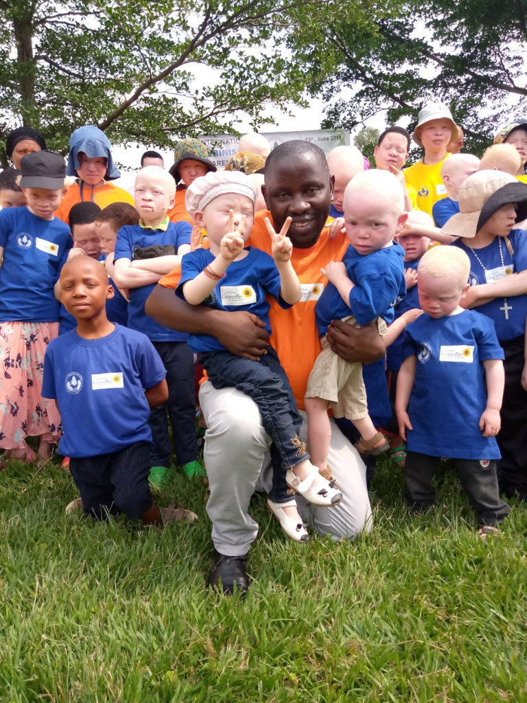 Education and Healthcare for 81 Albinos in Rwanda