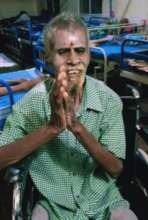 Mr. Ramasamy - after initial treatment
