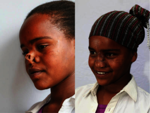 Ayantu before and after her surgery