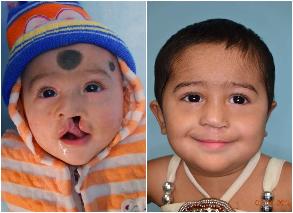 Nourish 1000 Malnourished Children 4 Cleft Surgery