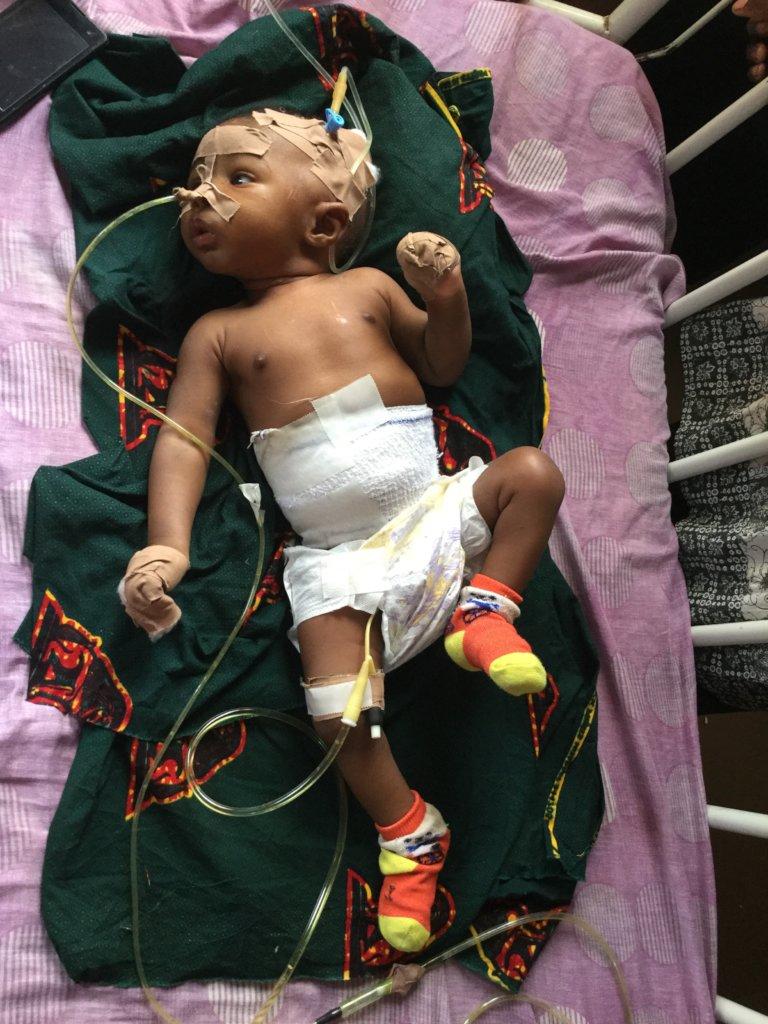 Life-saving surgery for 24 children in S.E Nigeria