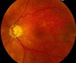 fundus photo of macula hole