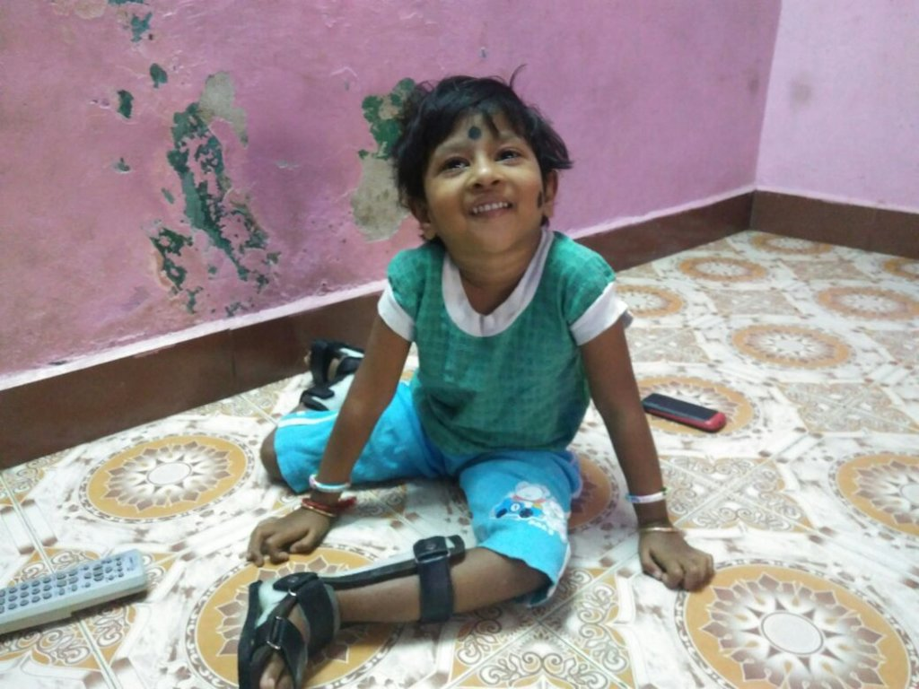 Empower 500 children with birth defects in Chennai