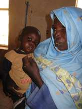 A baby in need of treatment for malnutrition