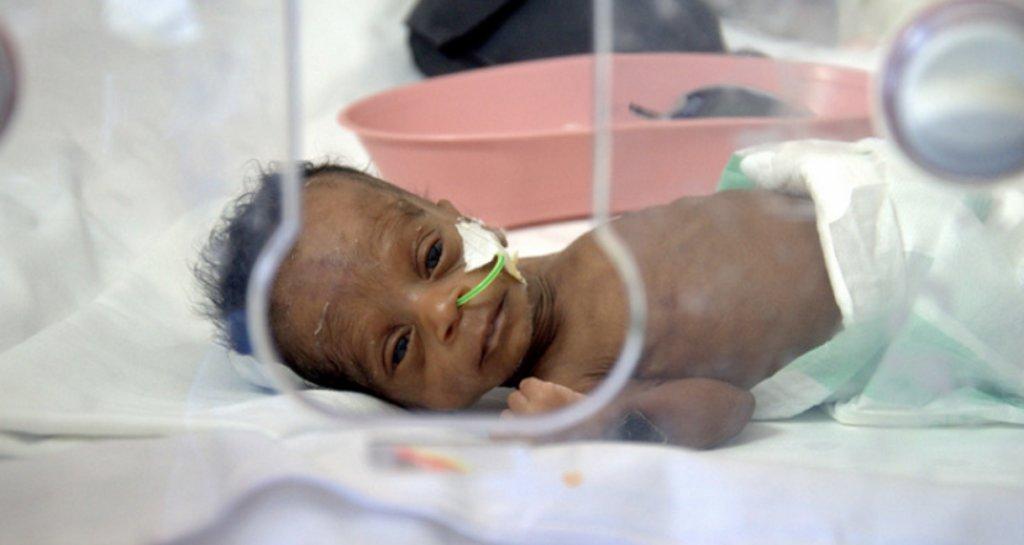 Screen 500 babies for congenital diseases in Ghana