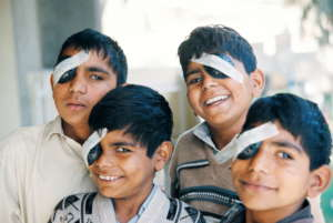 Four brothers with cataract