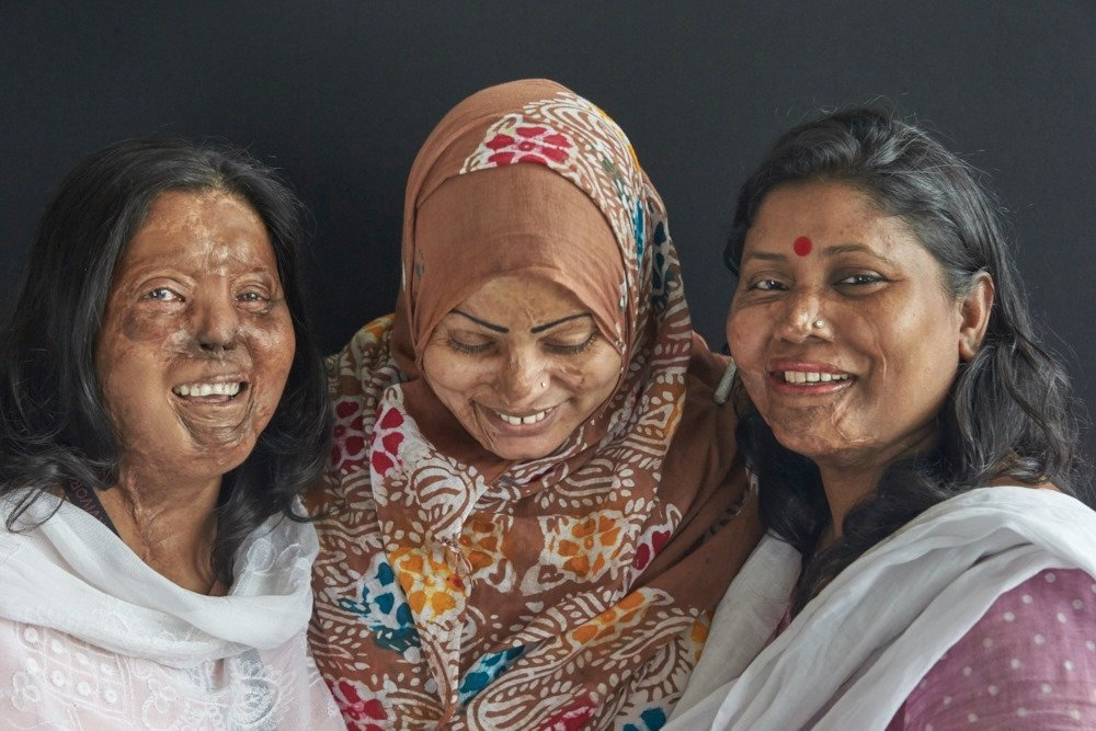 Hospital Care for 350 Acid Victims in Bangladesh