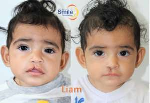 Liam - before and after surgery