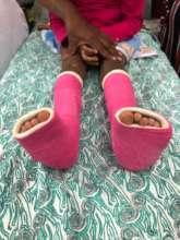 Little feet ..... being healed